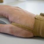 Previdência livra empresas de obrigação de comunicar parte dos acidentes de trabalho